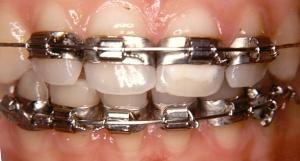 histoire appareil dentaire charlie sugar town